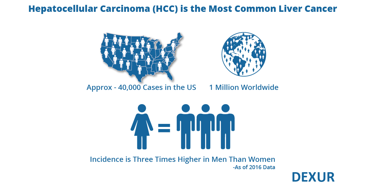 Hepatocellular Carcinoma key statistics, risks & treatment options
